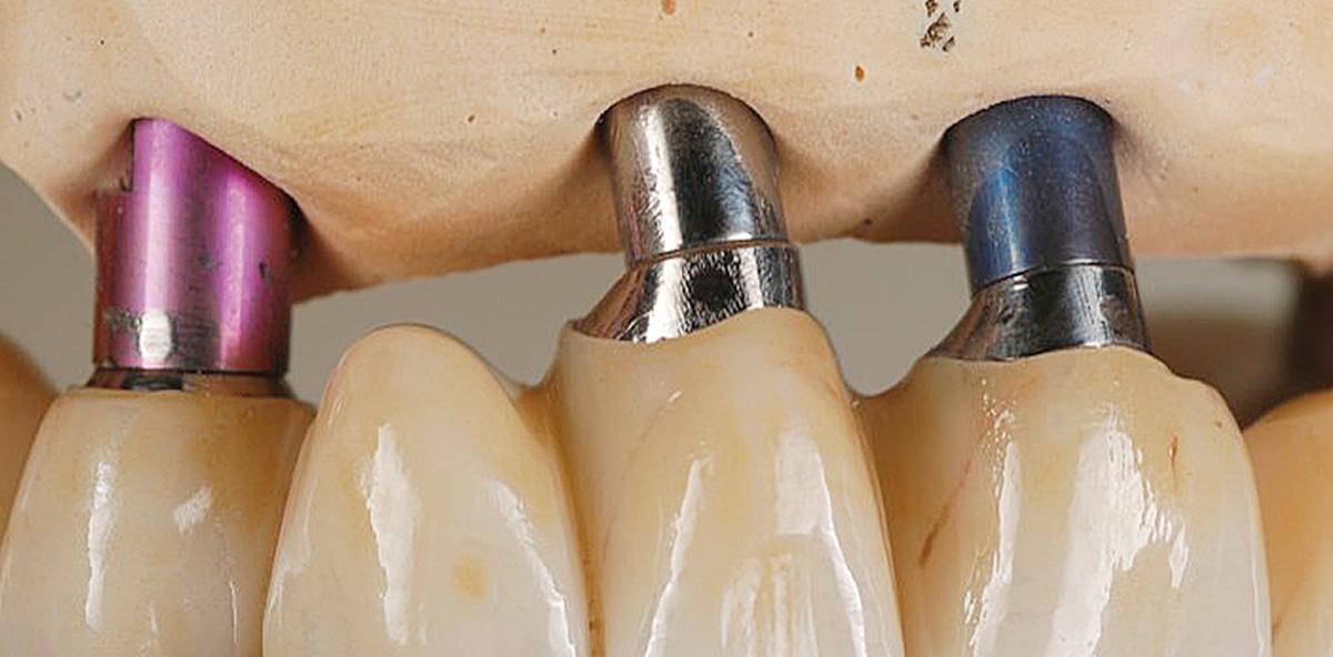 Bedingt herausnehmbare Brücke auf sechs Implantaten