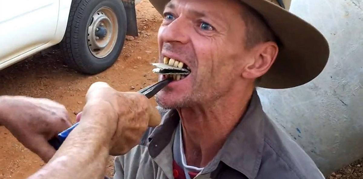 Ein Zahnarzttermin im Outback ...