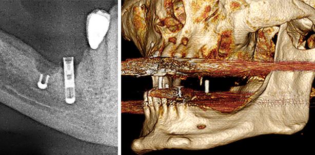 Herstellung und Anwendung CAD/CAM-gefräster, patientenspezifischer Knochenblöcke