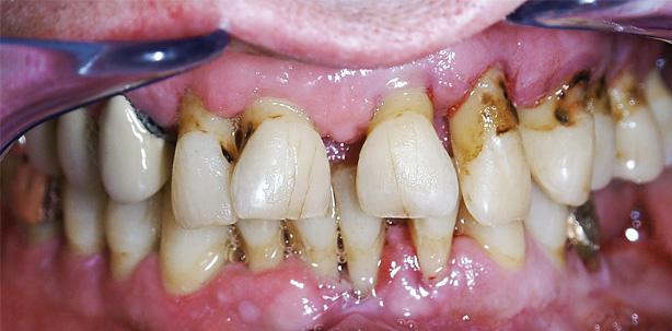 Diabetes mellitus und Parodontitis – eine Herausforderung für die Zahnarztpraxis