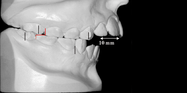 Korrekte Diagnose als Voraussetzung für dentofaziale Ästhetik und Stabilität