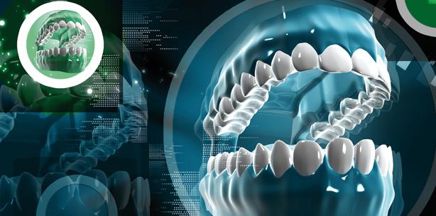 digitale abformung im scan verfahren zwp online das nachrichtenportal f r die dentalbranche. Black Bedroom Furniture Sets. Home Design Ideas