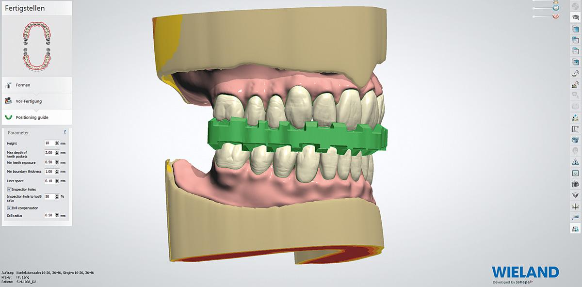 Digital Denture: Totalprothetik für das 21. Jahrhundert
