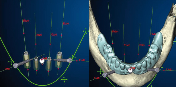Computerassistierte Implantologie und Prothetik im Alter