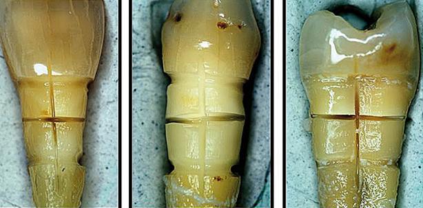 Modifikation von Zahnhalsdentin mit einem Diodenlaser zwecks Desensibilisierung