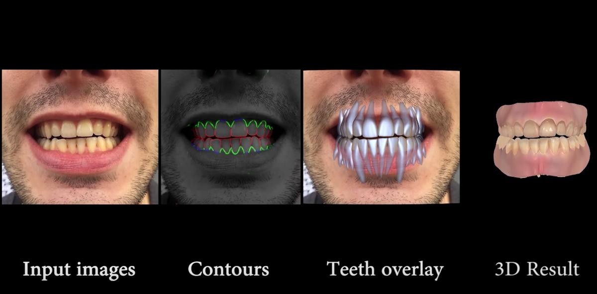 Disney entwickelt Software zur digitalen Darstellung von Zähnen
