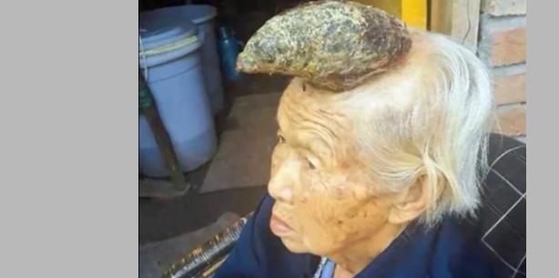 Chinesin wächst zwölf Zentimeter langes Horn aus dem Kopf