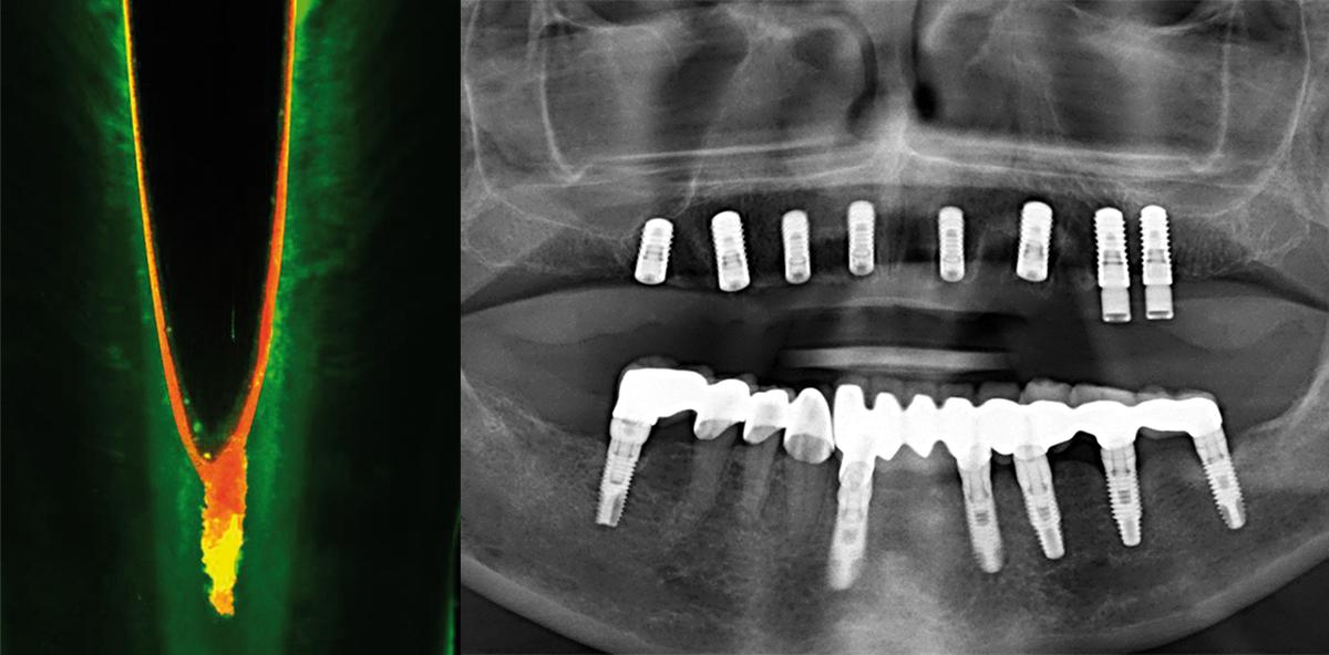 Endodontie vs. Implantologie