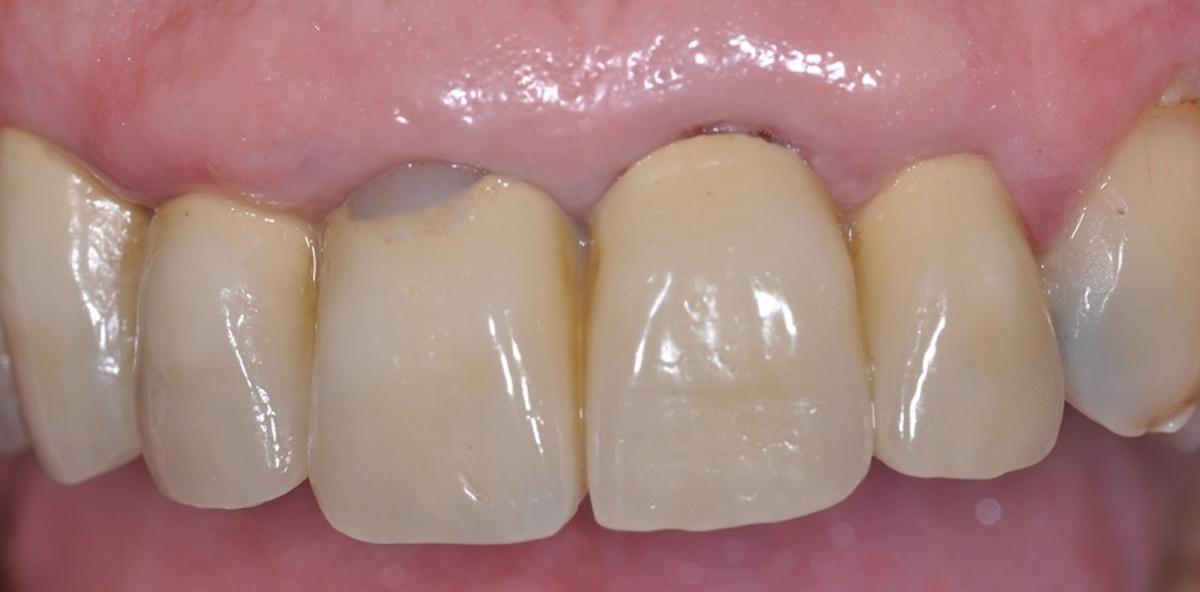 Socket Preservation 3.0: Sofortimplantation mit Keramik-Implantaten