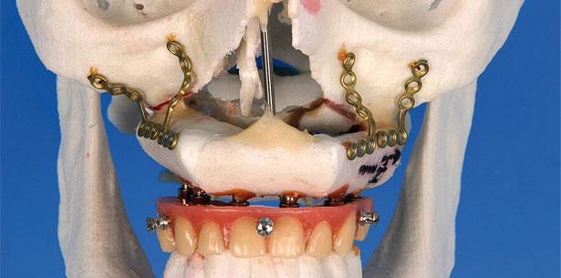Kieferrekonstruktion: Fibulatransplantate mit osseointegrierten Dentalimplantate