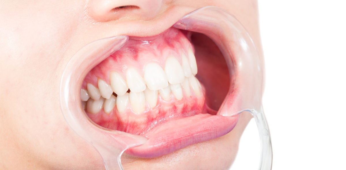 Experten-Tipp: Die wichtigsten Aspekte zum Thema Full-Mouth-Disinfection (FMD)