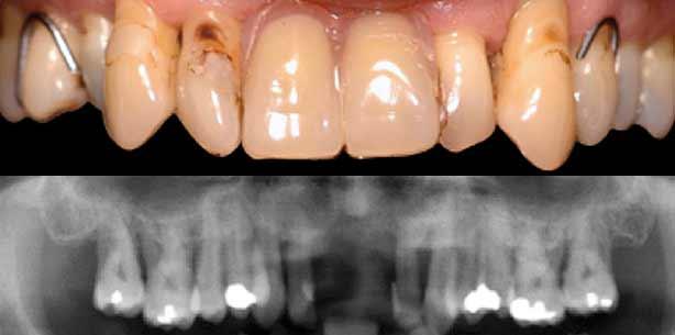 Implantologische Lösungen für komplexe parodontale Probleme