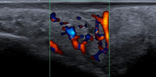 Darstellung einer Neubildung am Hartgaumen durch intraorale Sonografie