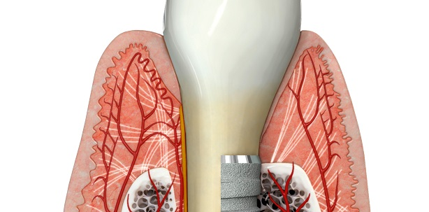 Anatomie parodontales und periimplantäres Weichgewebe