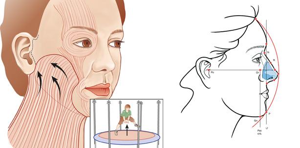 Ästhetische Gesichtschirurgie – all-inclusive