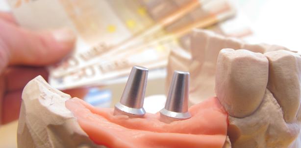 Implantatabutments: Verwirrung bei Gebührennummern 9040, 9050, 9060