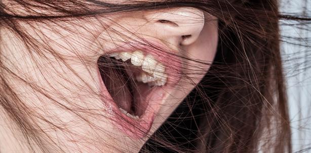 Dünne Haare – schlechte Zähne?