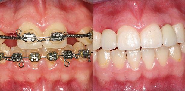 Kieferorthopädische und implantologische Behandlung einer Hypodontie