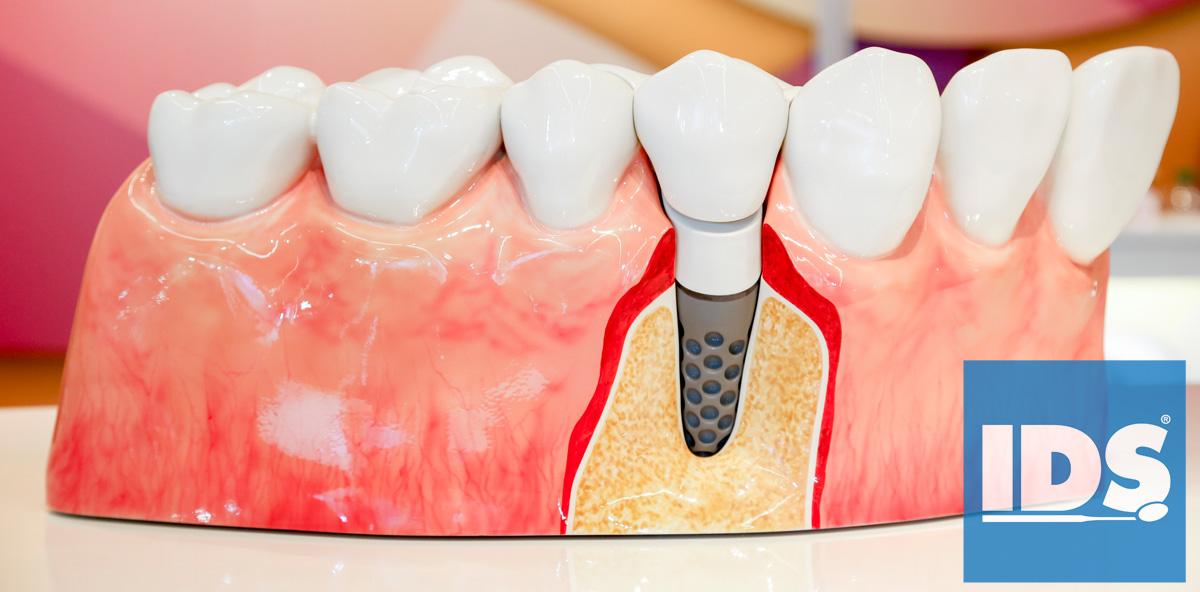 Implantologie auf der Internationalen Dental-Schau (IDS) 2017