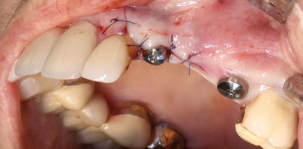 Schonendere Implantatrehabilitation durch Titan-Zirkonium-Legierung