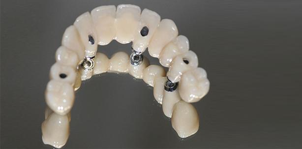 Minimalinvasives, prothetisches Implantatkonzept mit einteilig verschraubter Lös