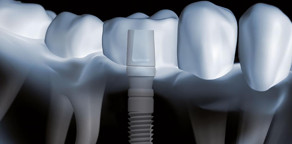 Patienten profitieren von verbesserter Zahnfleischgesundheit