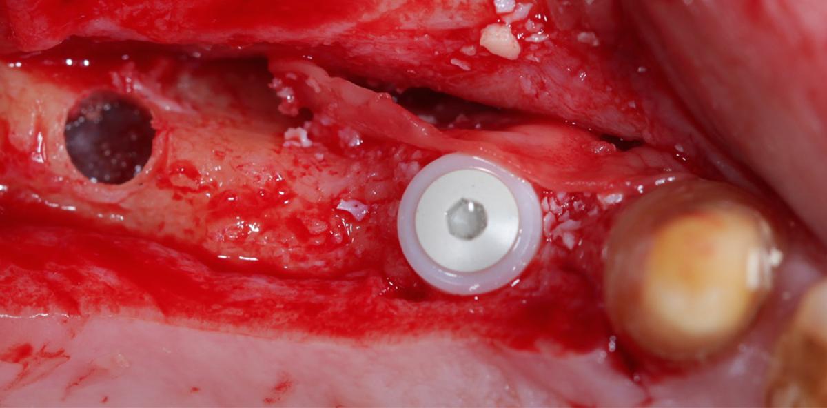 Expertentipp: Orale Ultraschallchirurgie