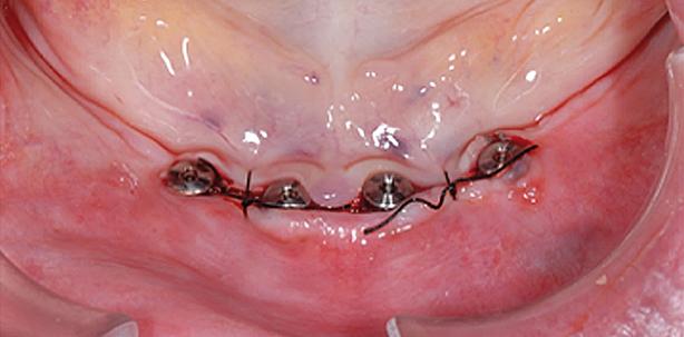 Herausforderungen der Implantatversorgung
