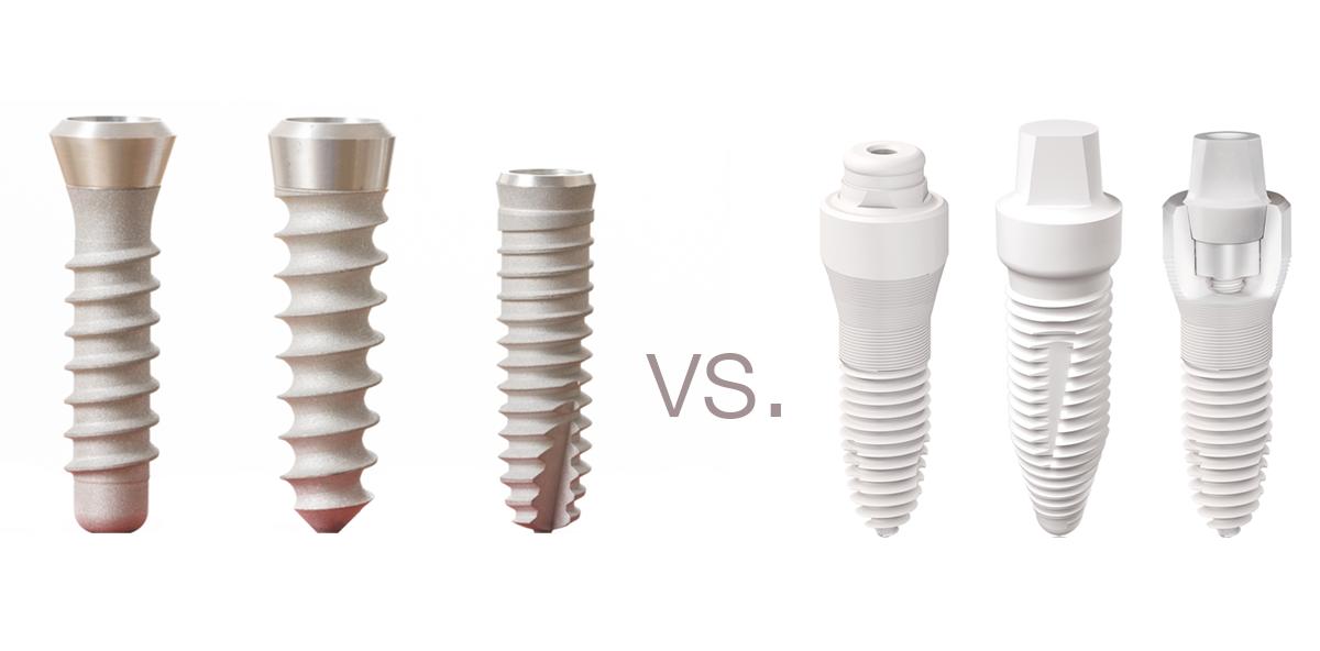 Keramik vs. Titan – Wo liegt die  Zukunft der Implantologie?