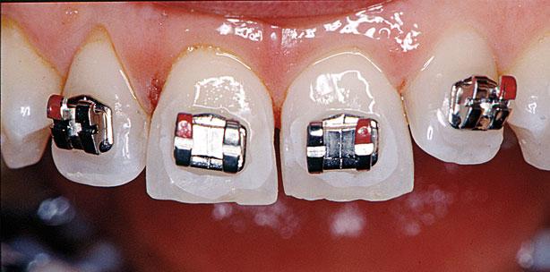 Kieferorthopädische Behandlung nach parodontalregenerativen Maßnahmen