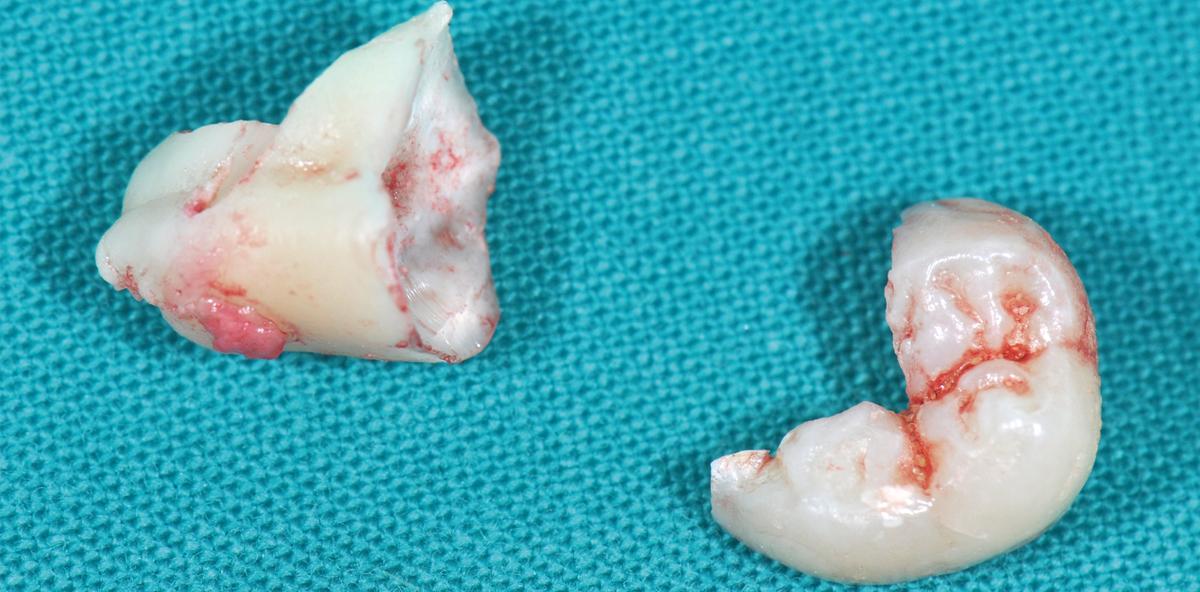 Vermeidung von Knochentaschen bei Weisheitszahn-Osteotomien