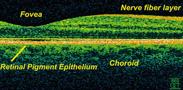 Optische Kohärenztomografie – kurz und bündig