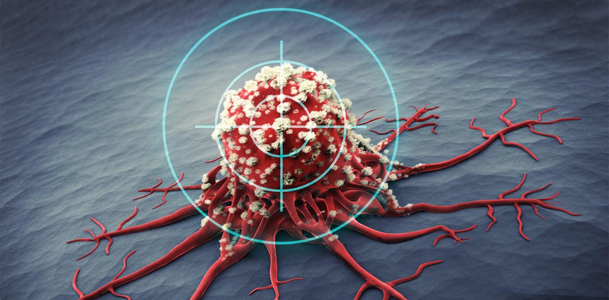 Krebstherapie: Lebenserwartung und Lebensqualität steigen
