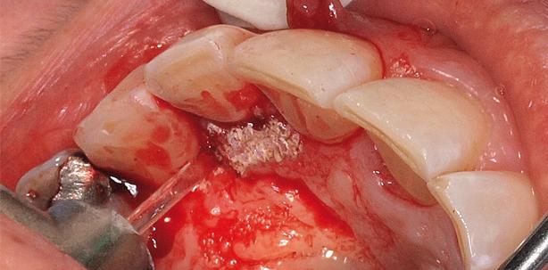 Die laserunterstützte Zahnmedizin in der täglichen Praxisroutine