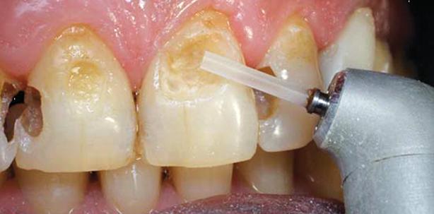 Laser im Vergleich mit Bohrer und Dentin-Bonding
