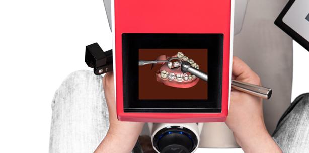 """Virtuelles Bohren: Studenten üben am """"3-D-Mund"""""""