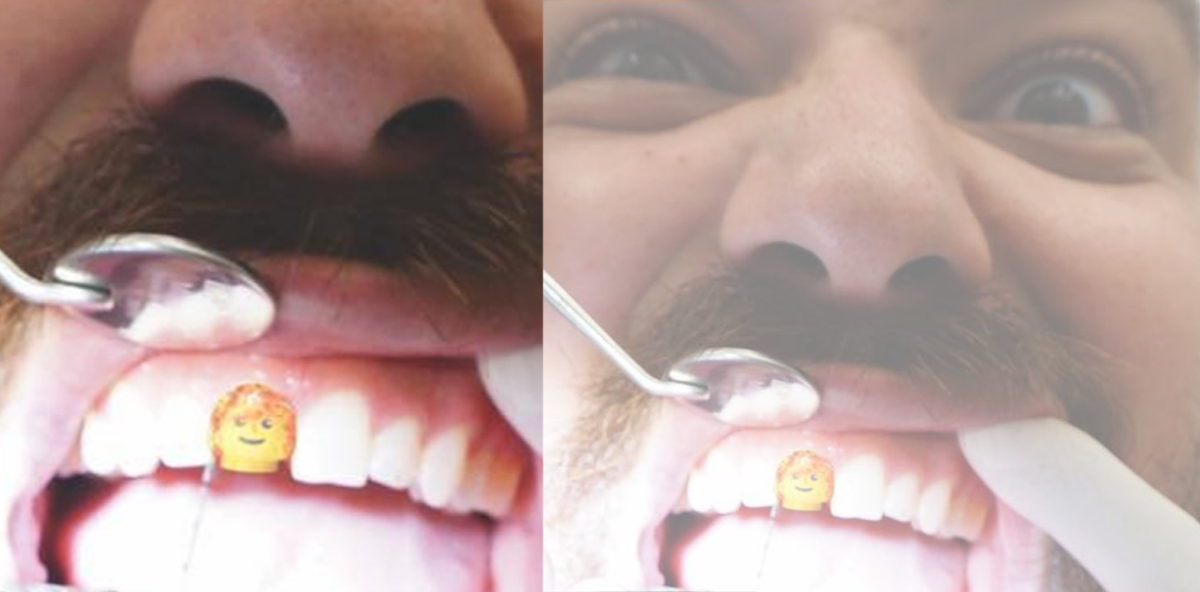 LEGO® Männchen als Zahnersatz