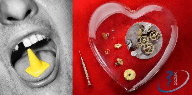 """DGZMK: Neue Leitlinie """"Zahnsanierung vor Herzklappenersatz"""""""