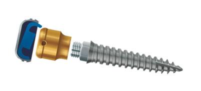 LOCATOR® Overdenture Implantat System – LODI