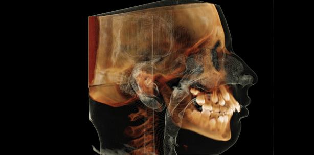 Ultra Low Dose: Röntgen mit minimierter Patientendosis – Teil 1
