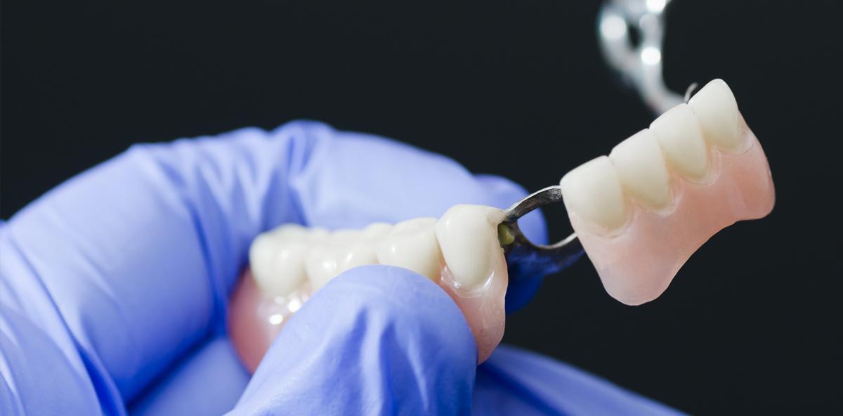 Vom Mund in die Speiseröhre: Mann verschluckt Prothese im Schlaf