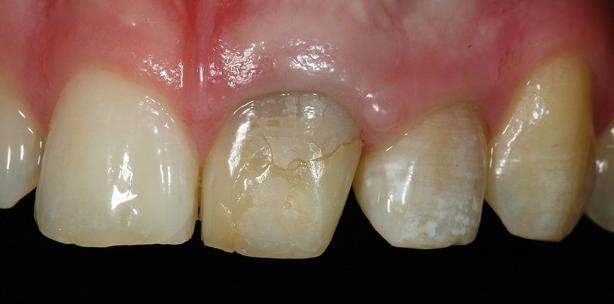 Therapie irreversibel verfärbter Zahnstümpfe im Frontzahnbereich