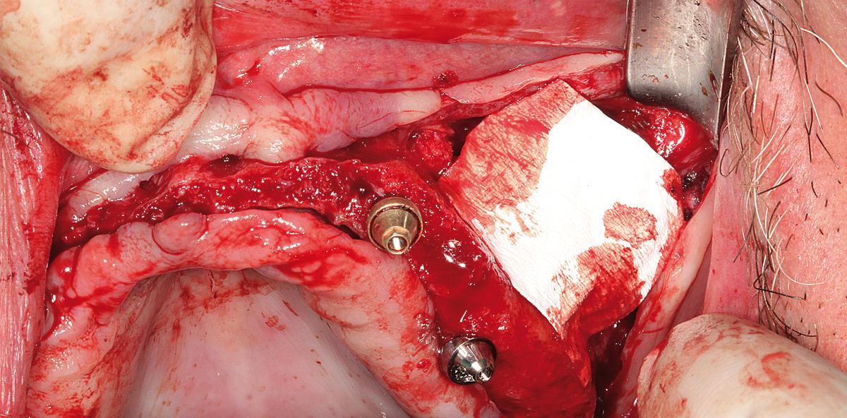 Festsitzende Prothetik im Oberkiefer bei geringem distalen Knochenangebot
