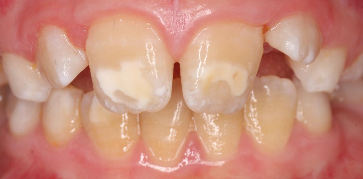 Ätiologie und Therapie von MIH-Zähnen