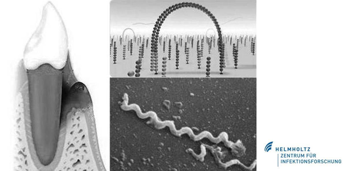 Mikrobiom der Zahntaschen spielt zentrale Rolle bei Parodontitis