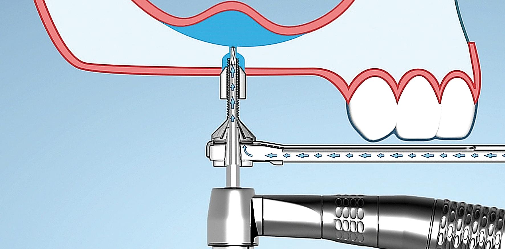 Minimalinvasiver Sinuslift mit hohem hydraulischen Druck