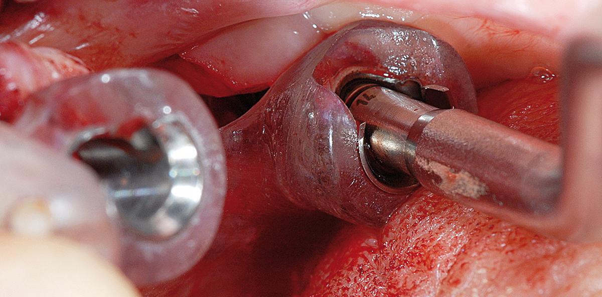 Konfektionierte Verbindungselemente zur Verankerung von Zahnprothesen auf Impla