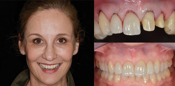Nature's Design – Neue Zähne ohne künstliche Nebenwirkungen