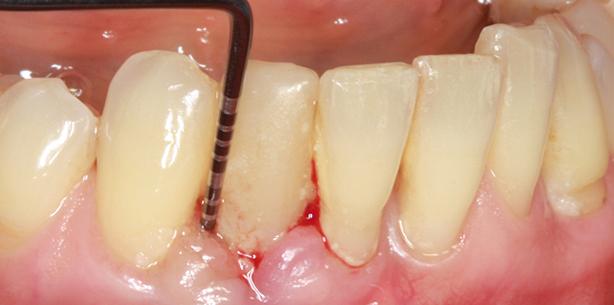 Nichtchirurgische Parodontitis- und Periimplantitistherapie