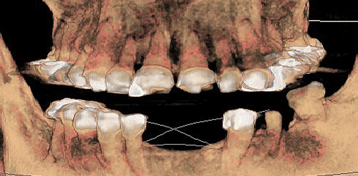 Dentinogenesis imperfecta hereditaria: Implantologische Möglichkeiten